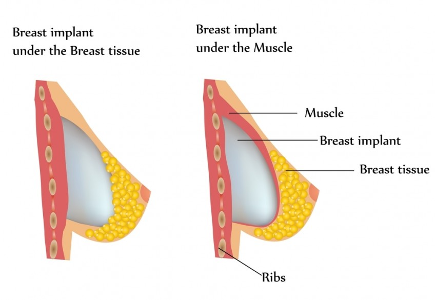 breast-implant-placement (1)